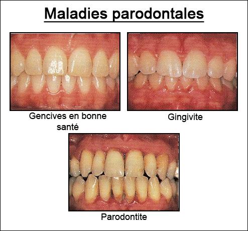 Exemple gingivite